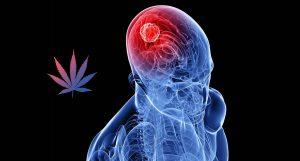 Cannabis Medicinal será testada no tratamento de câncer cerebral