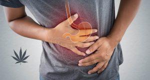 Dr Banz - Efeitos benéficos da cannabis na Doença de Chron
