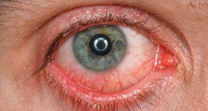 Dr Banz - Colírio faz mal para os olhos?